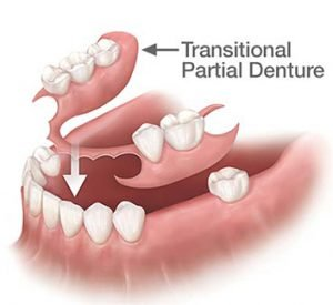 Transitional Dentures
